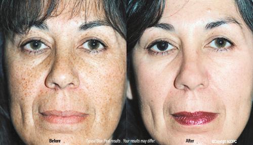 Facial peel product reviews