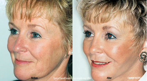 look as young as you feel with a facelift