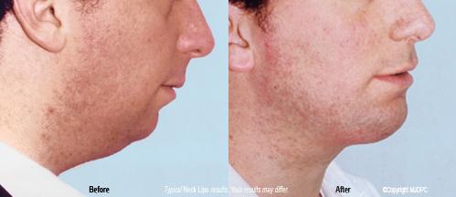 Maryland facial liposuction
