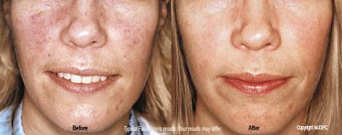 facial vein treatments