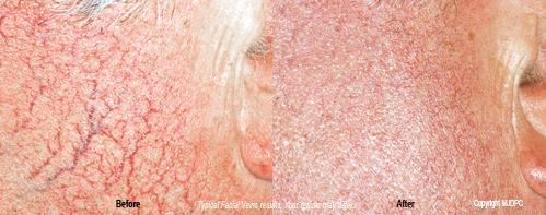 vein treatment toronto Facial in