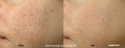 non ablative laser treatment