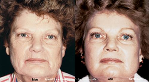 Facial laser resurfacing wasgington dc