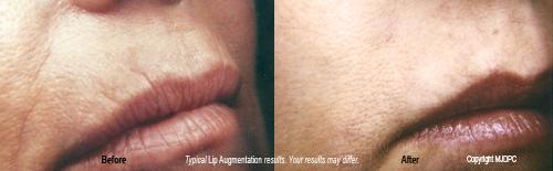 Lip Augmentation, Murfreesboro, Facial Plastic Surgery, Paul