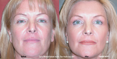 Facial florida plastic surgery