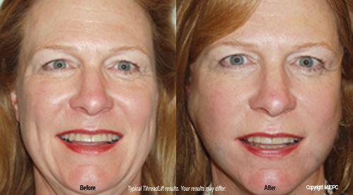 Facial lift procedure thread