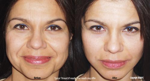 ThreadLift, Woodbury, Facial Plastic Surgery, Stephen T  Greenberg